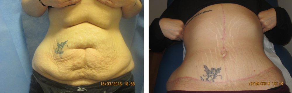 T-Abdominoplasty