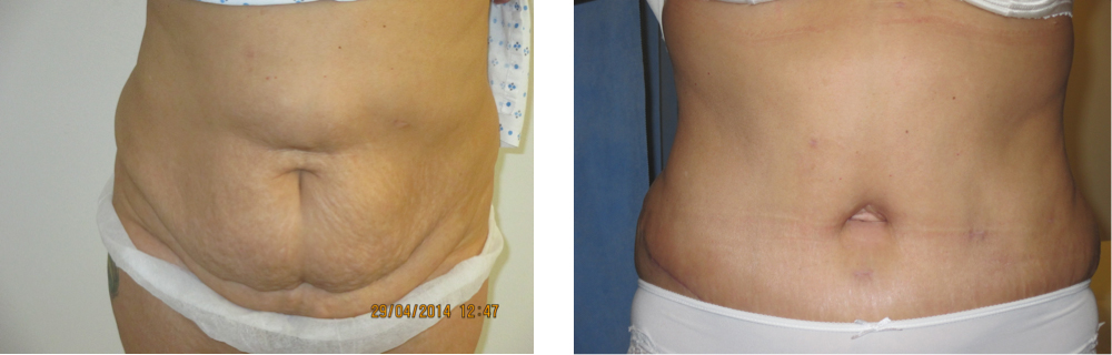 before and after a full abdominoplasty