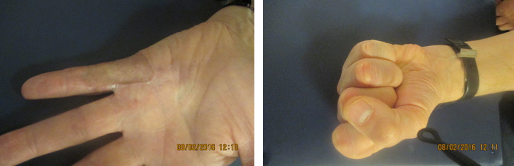 complex hand surgery including skin graft