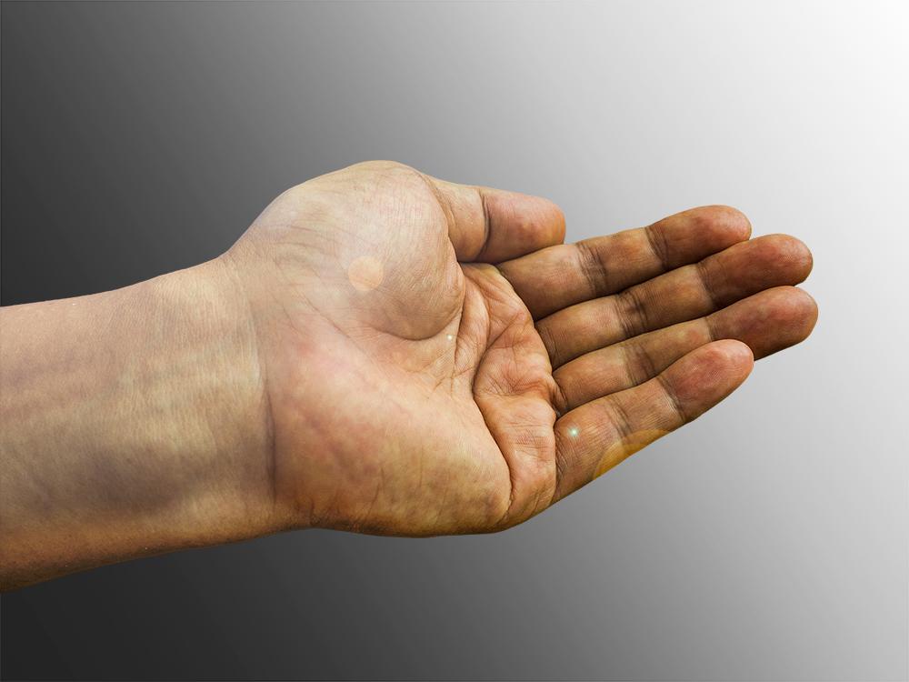 hand surgery in preston