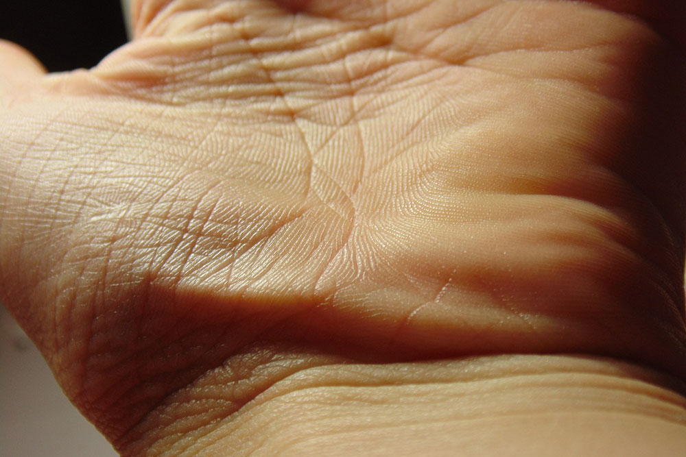 carpal cubital tunnel syndrome