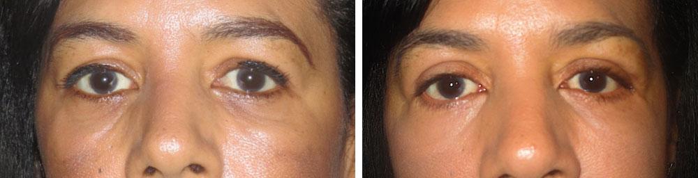 eyelid lift in lancashire bolton