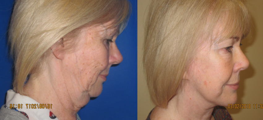 facelift, neck lift preston pic 4