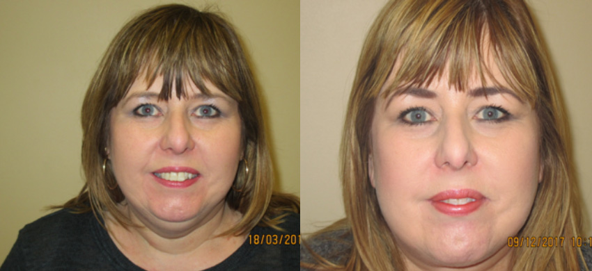 facelift neck lift liposuction