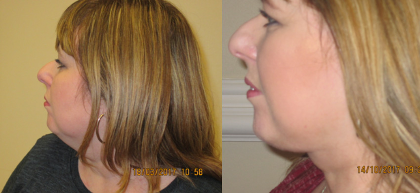 facelift neck lift liposuction preston