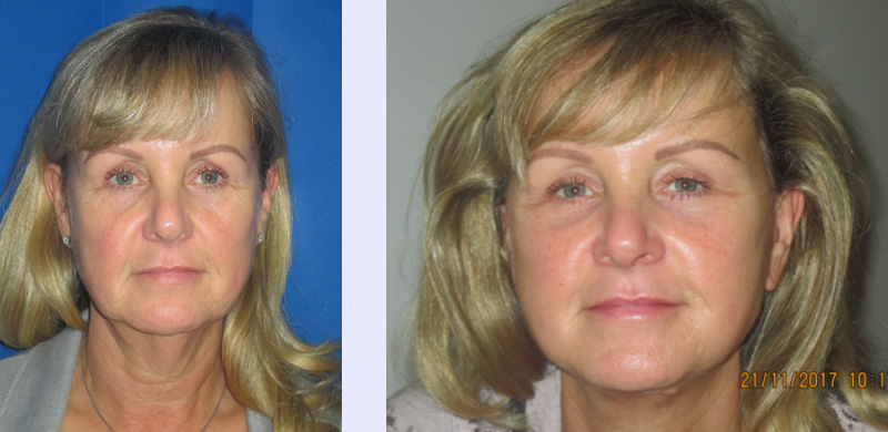 facelift and neck lift in Preston 1