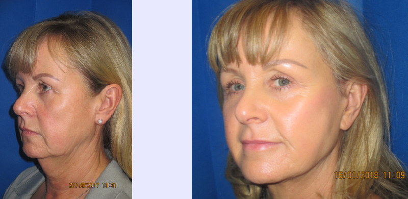 facelift and neck lift preston 2