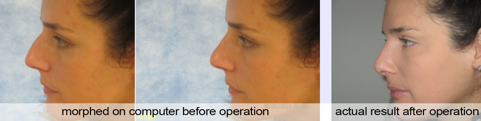 rhinoplasty nose job image preston lancashire