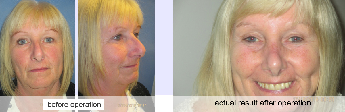 rhinoplasty in preston nose job
